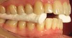 occlusione2