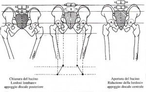 posizione troganterica