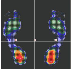 Baropodometria statica_2