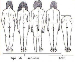 valutazione scoliosi