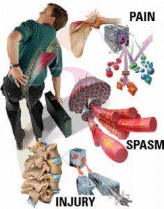 Trattamento di ricupero a malattie e lesioni di una spina dorsale