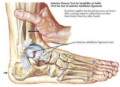 Distorsione della caviglia Test 1