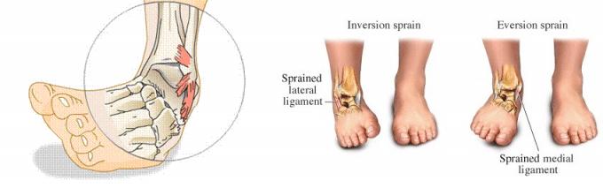 Distorsione della Caviglia 3