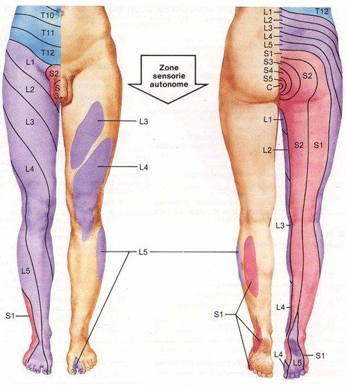 Periodo di riabilitazione dopo rimozione di una vena su una gamba