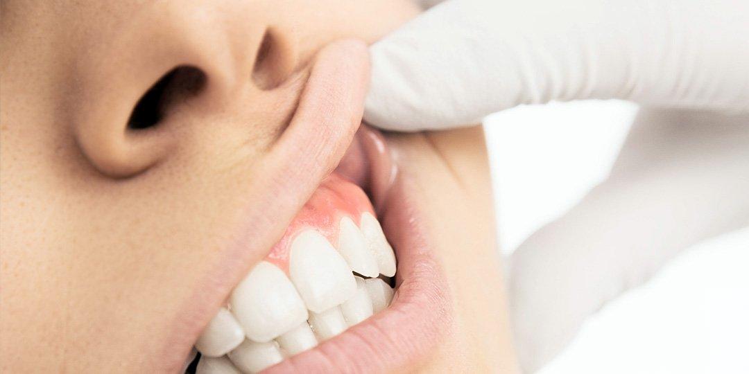 corso di formazione odontoiatria e postura