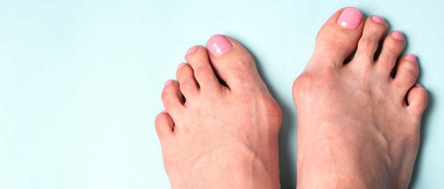 Distorsione della Caviglia 1