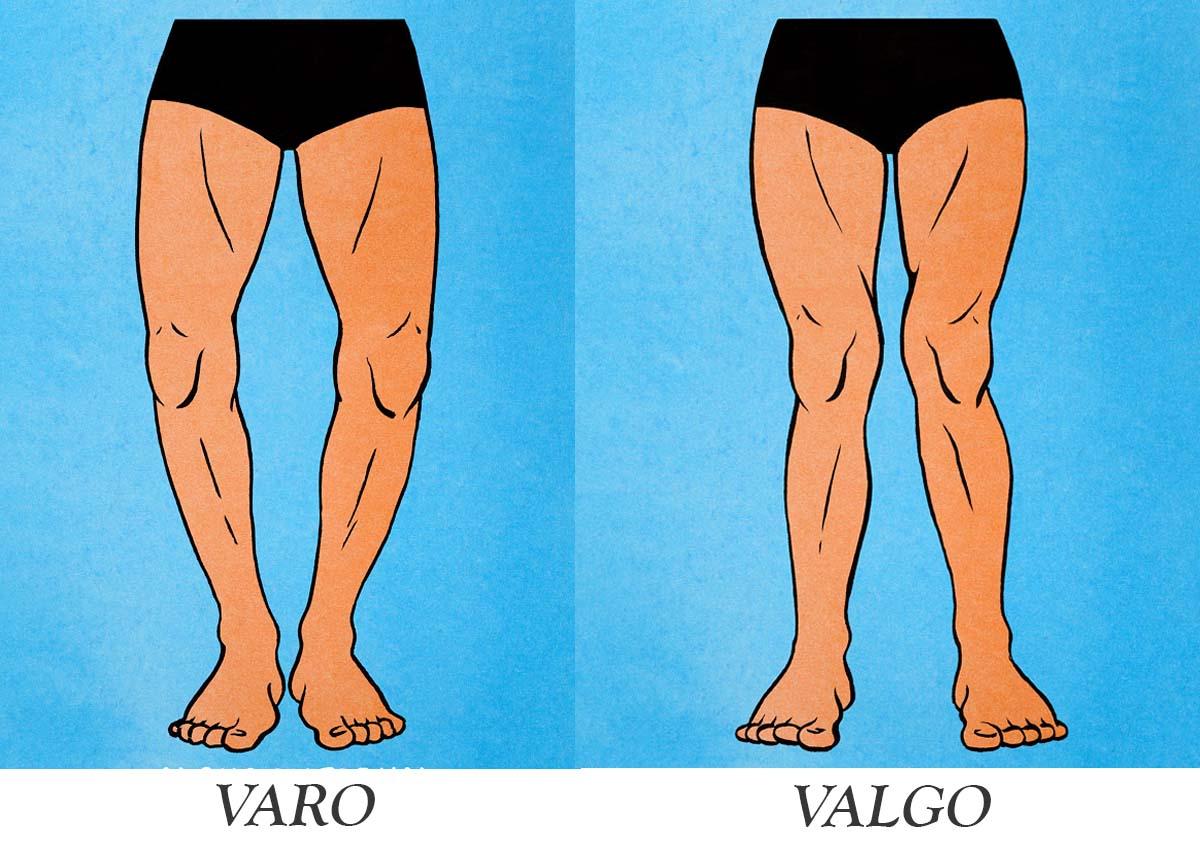 Ginocchio Varo e Valgo